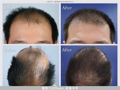 中年男子的困繞禿頭男子的大進擊 Yu Lin